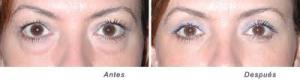 eliminar bolsas en los ojos, blefaroplastia